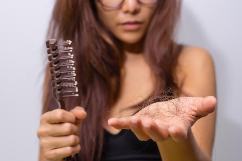 Vypadavani vlasu